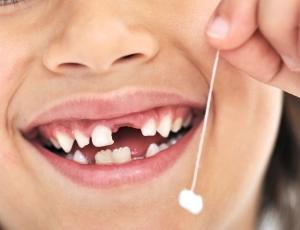 видеть во сне сломанные зубы