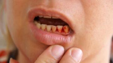 к чему снятся зубы выпадают с кровью