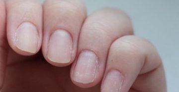 к чему снятся ногти на руках